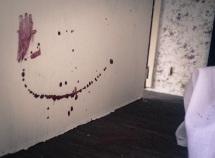 18 - Blood
